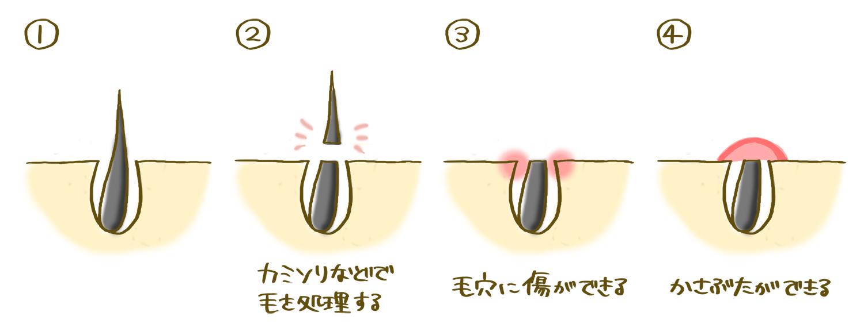 kamisori_kizu_10